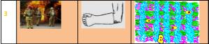 Что происходит в зоне перелома в острой фазе?