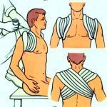 8-образная гипсовая повязка