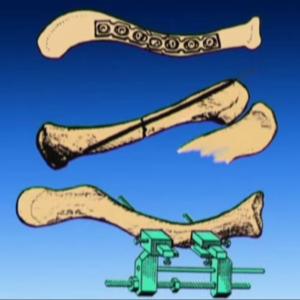 Виды остеосинтеза ключицы: 1. пластиной 2. штифтом 3. аппаратом внешней фиксации