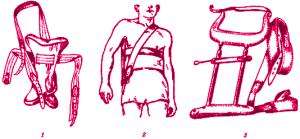 лечебные шины для ключицы. 1 и 2 - Белера, 3 - Кузьминского
