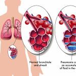 Развитие вирусной пневмонии